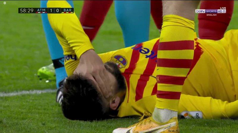 مصدومیت شدید پیکه؛ تن بارسلونا لرزید (عکس)