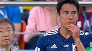 بازگشت به زمین بازیکن ژاپن با خونریزی از بینی